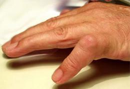 dedo de gatillo