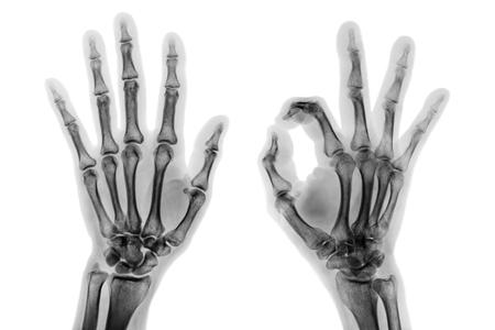 Traumaunit y pruebas diagnosticas