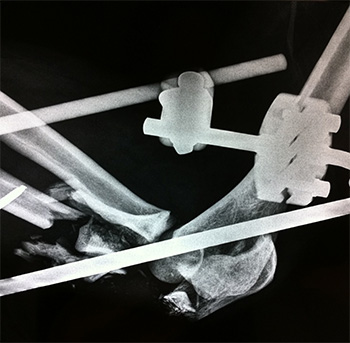 fractura codo Traumaunit