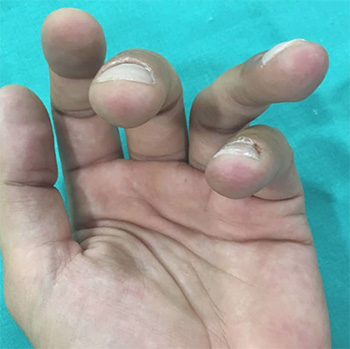 fractura dedo