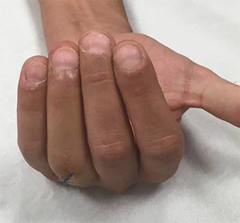 fractura dedos resultado