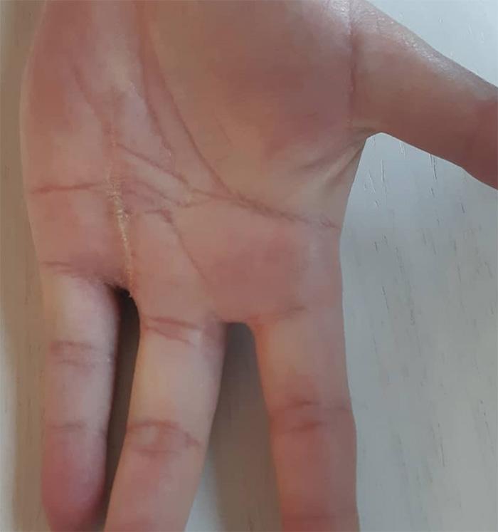 Tratamiento lesion dedos de la mano
