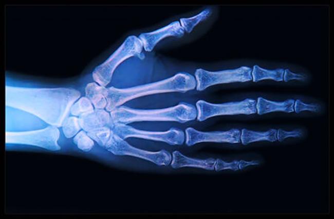patologias artrosicas