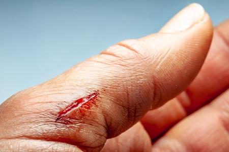 Traumaunit  heridas y secciones