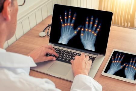 artrosis Traumaunit