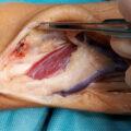 cirugia de mano y muñeca