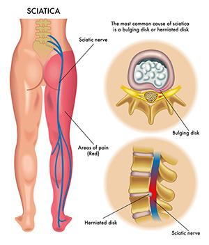 Nervio periferico piernas