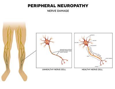 traumaunit nervio periferico