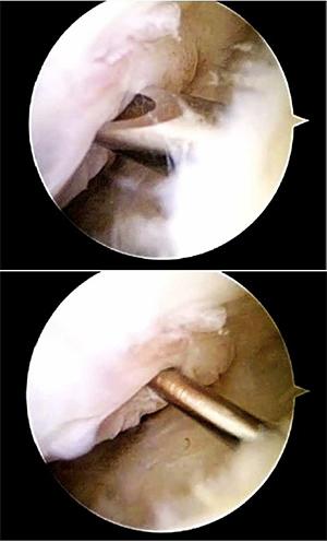 Fractura escafoides | tratamiento artroscopico