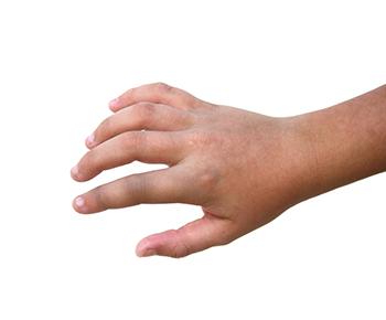 fractura de dedos de la mano