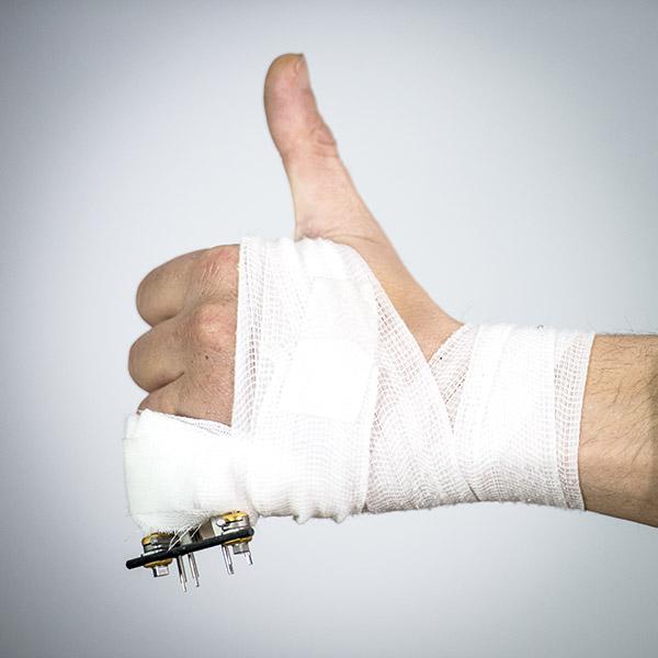fractura de dedo
