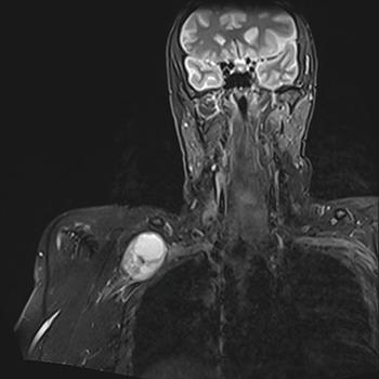 tumores nervisos