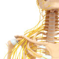 Tumores nervisoso y nervio periférico
