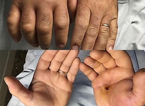 traumaunit cirugia de la mano